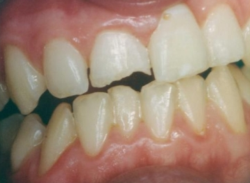 Fractured Incisor
