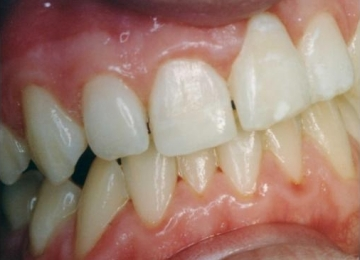 Repaired Fractured Incisor